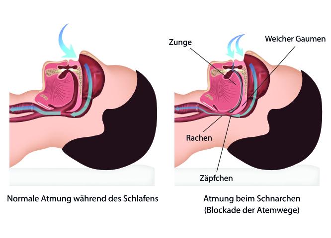 Schnarchen - Ursachen